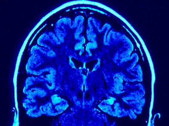 У чиновников станут проверять нарушение мозгового кровообращения