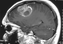 Пять фактов о глиобластоме - болезни, которая убила Жанну Фриске
