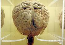 Генетики изклеток кожи человекаполучили клетки мозга
