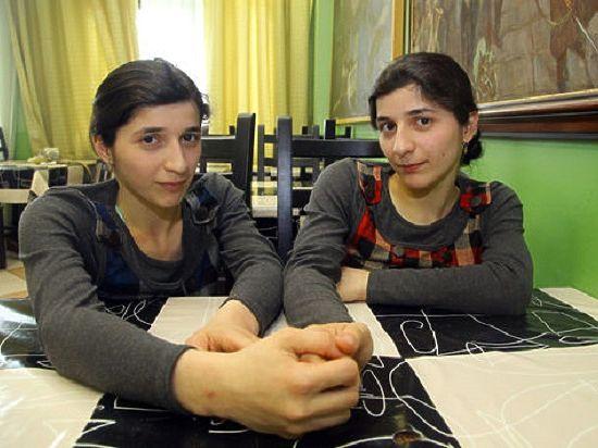 Зита скончалась через 12 лет после операции по разделению