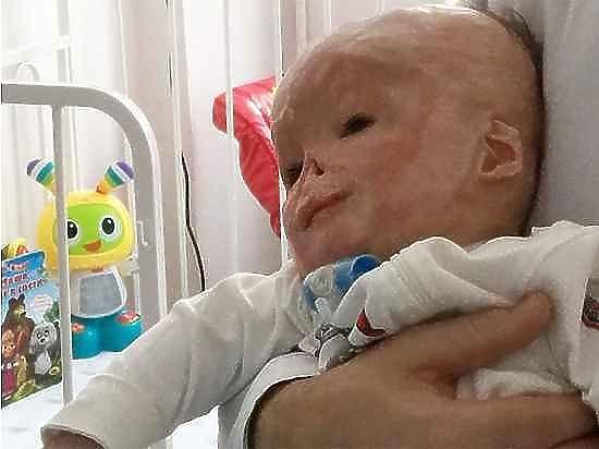 Судьба тульского ребёнка, обожженного в роддоме, опять не решена