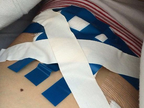 Перевязки изолентой делали пациентам в российской больнице