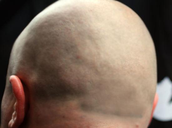 Ученые обнаружили ген, из-за которого мужчины лысеют