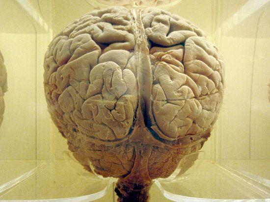 Хороший иммунитет оказался признаком маленького мозга