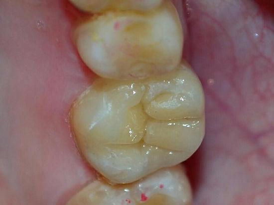 Москвич вывихнул челюсть при попытке вырвать зуб с помощью двери