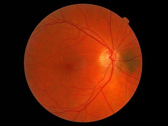 Ожидается, что это поможет многим пациентам, рискующим потерять зрение