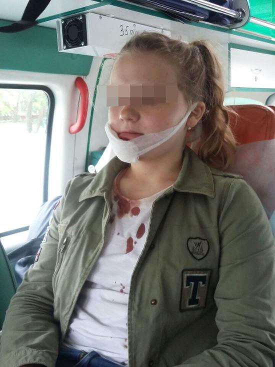 Ужасы московских квестов: 12-летняя девочка изуродовала лицо