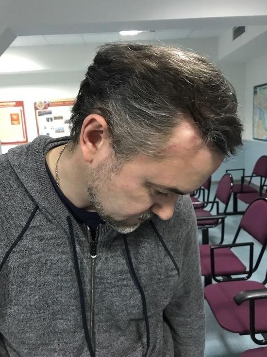 Задержанные на Тверской показали травмы: вызов