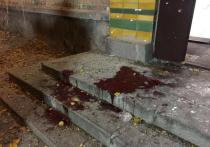 Следователи выделили три основные версии взрыва в Киеве, в ходе которого, в частности, пострадал депутат от Радикальной партии Игорь Мосийчук