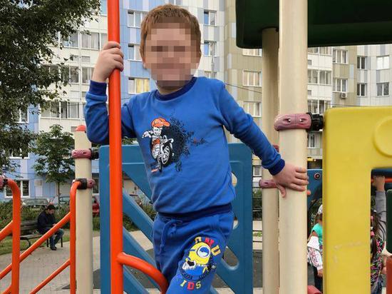 Приемная мать магаданского мальчика делала его инвалидом ради пособий