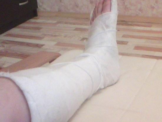 В московском торговом центре эскалатор «зажевал» ногу ребенка