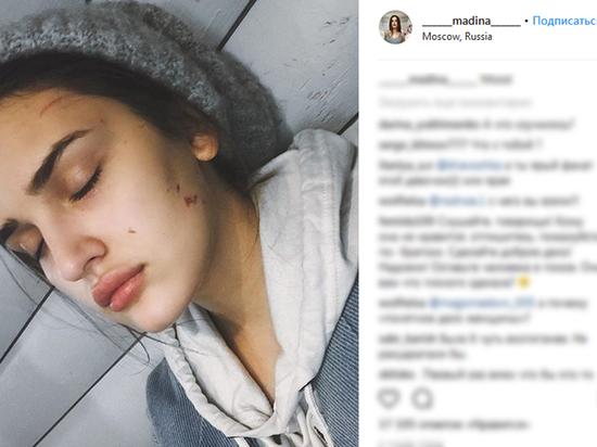 Дагестанский блогер рассказала о том, как ее избила нетерпеливая москвичка