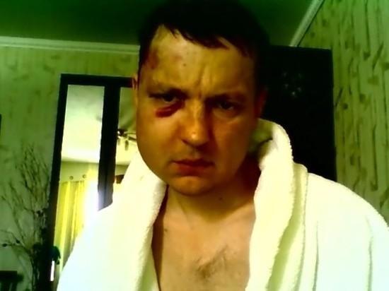 Полиция ищет злоумышленников, избивших шелеховского журналиста