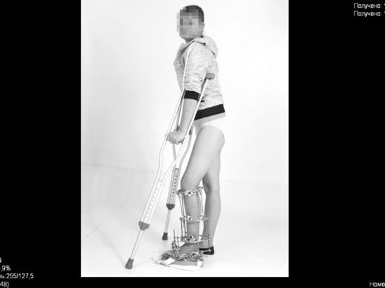 Как хирург и переводчица из Краснодара спасали аппаратом Илизарова руку и ногу