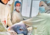 У московской пенсионерки удалили опухоль, похожую на инопланетное яйцо