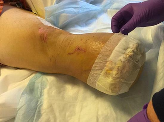 Американец накормил друзей своей ампутированной ногой