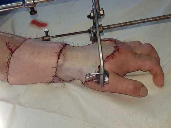 Московские хирурги спасли пациенту руку, раздробленную поездом