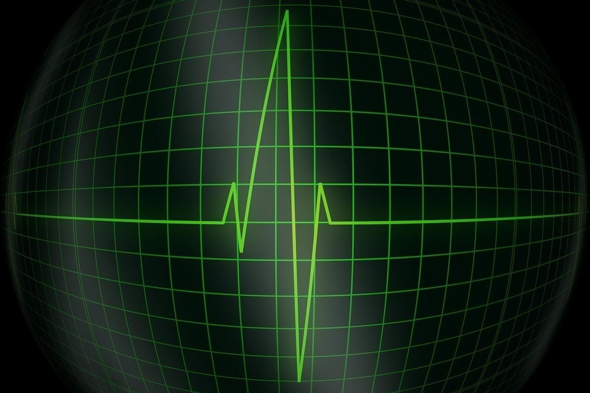 Инфаркт убивает женщин вдвое чаще, чем мужчин