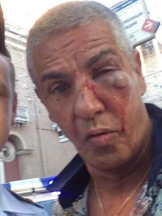 Сами Насери из-за травмы глаза пришлось менять хрусталик
