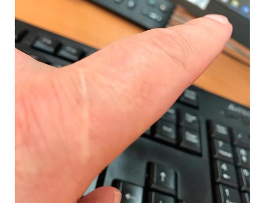 У всех мужчин нашелся мистический шрам на указательном пальце