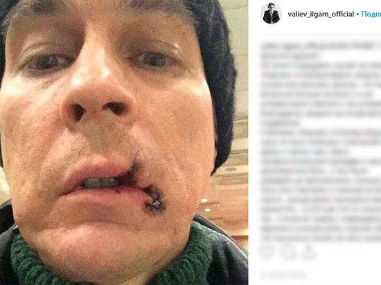 Русский оперный солист порвал рот вовремя выступления