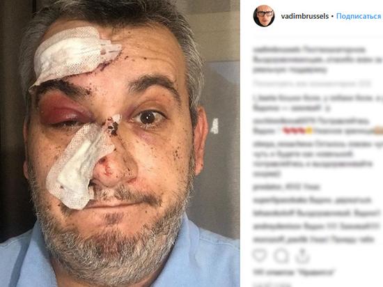 Ведущему НТВ Вадиму Глускеру изуродовало лицо эскалатором
