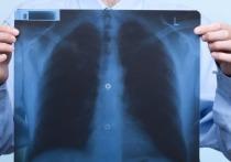 Ульяновские врачи спасли пациентку от смертельного заболевания