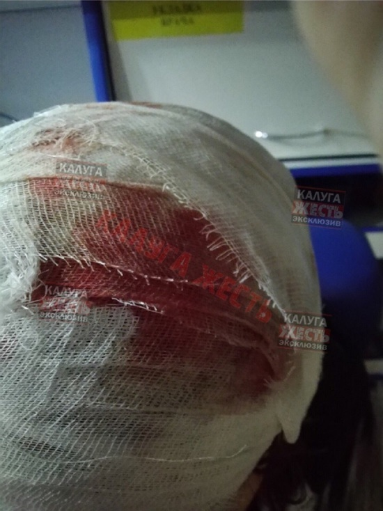 Калужанке пробило голову фрагментом салюта