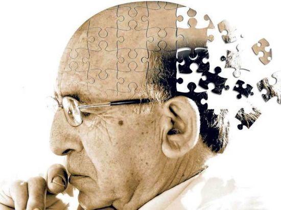 Ученые выяснили, что болезнью Альцгеймера можно заразиться