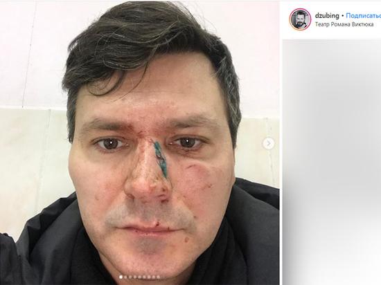 Дзюбу избили: актёр театра Виктюка пострадал от рук коллеги