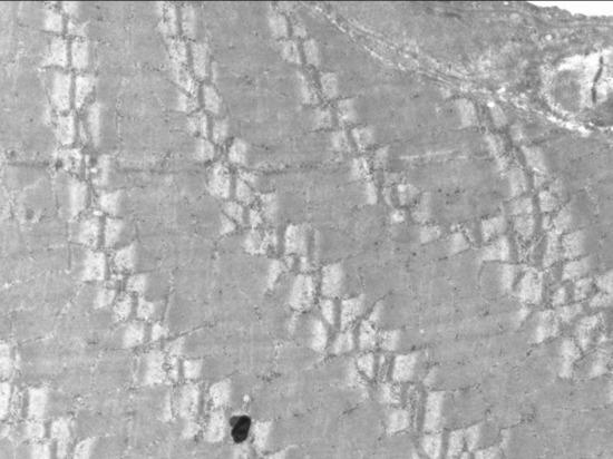 Новосибирский терагерцевый лазер «нашинковал мышцы как капусту»