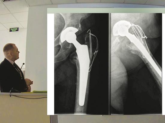 В столице налажена система помощи больным при переломах проксимального отдела бедренной кости