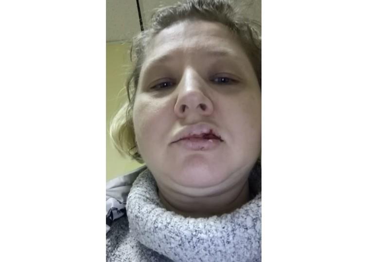 Племянница Скрипаля поведала , что ихсмужем избил коллега поТСЖ