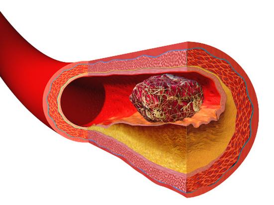 Профессор МГУ назвал основные причины отрыва тромба