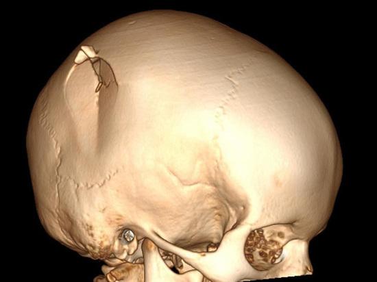 У ребенка было сложный оскольчатый перелом черепа