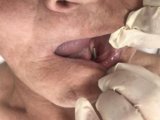 Житель Бурятии почти 30 лет прожил с самопальными болтами в челюсти