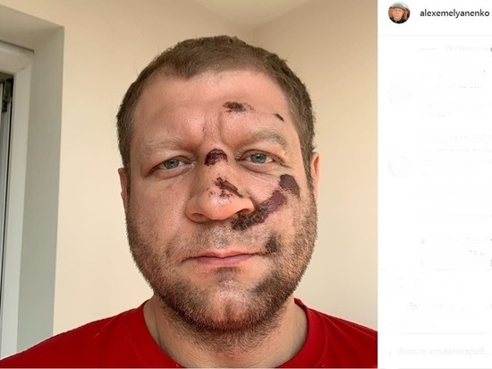 Бой Емельяненко в Самаре перенесли из-за падения с велосипеда