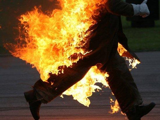 В Саранске обгорел мужчина