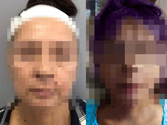 65-летней волгоградке после пластики порекомендовали поменять паспорт