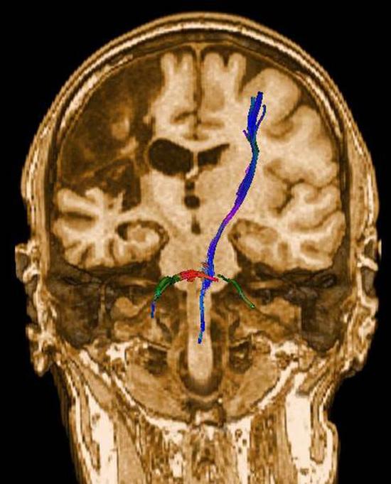Академик рассказал о тайнах человеческого мозга