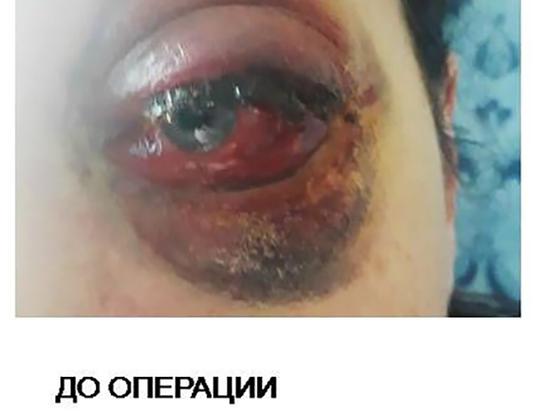 В Петербурге врачи спасли пациентке выпадающий глаз
