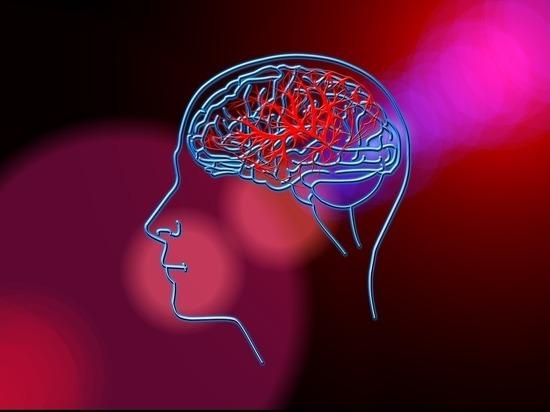 Названы главные предпосылки инсульта у мужчин и женщин