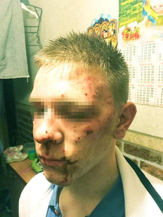 Подростка из Колпино избили в полиции: