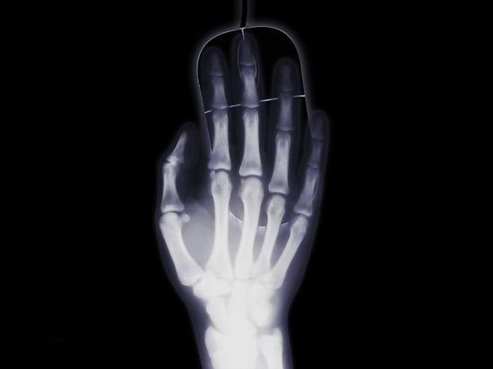 В арсенале травматологов ОКБ № 2 появился новый рентген-аппарат