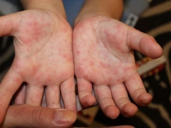 В ближайшие дни в Хабаровском крае ожидается всплеск энтеровирусной инфекции