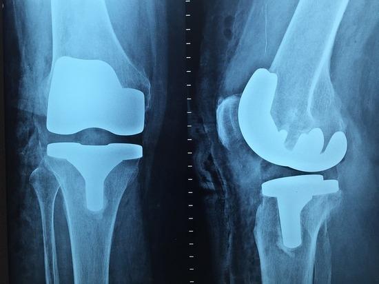 Ставропольские медики заявили о прорыве в ортопедии