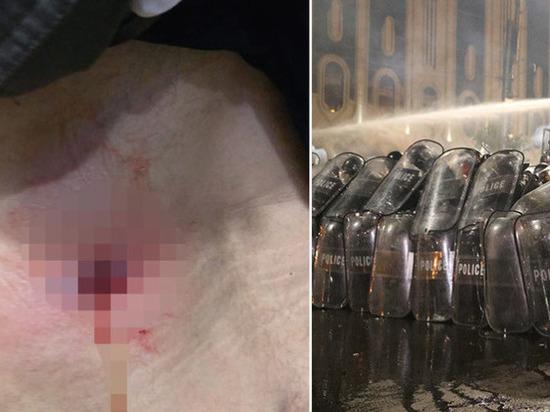 Продюсер Ruptly ранен резиновой пулей в ходе беспорядков в Тбилиси