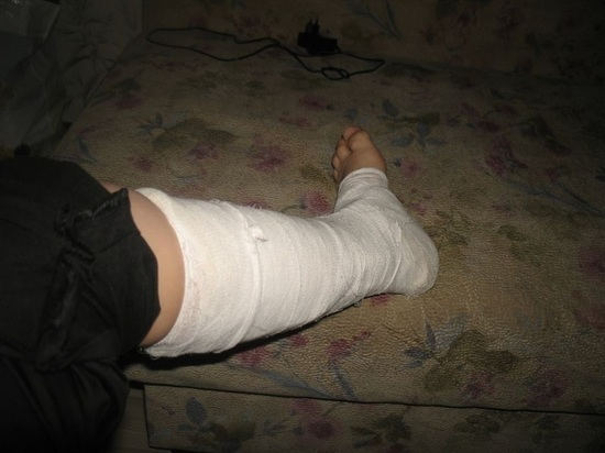 Калининградец встретил знакомого и сломал ему ногу