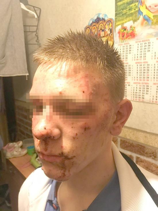 Подросток о пытках в полиции Колпино: «Угрожали, что изнасилуют дубинкой»