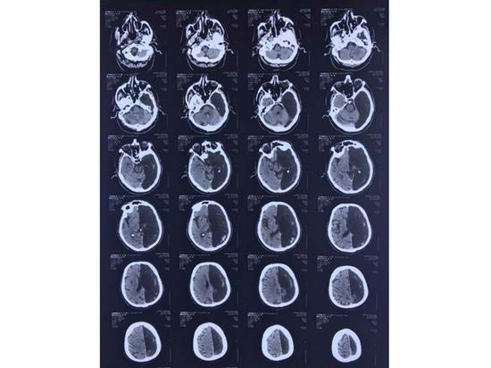 В Подмосковье обнаружили пациента с половиной мозга